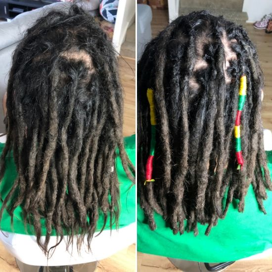 Dread repair Chicago